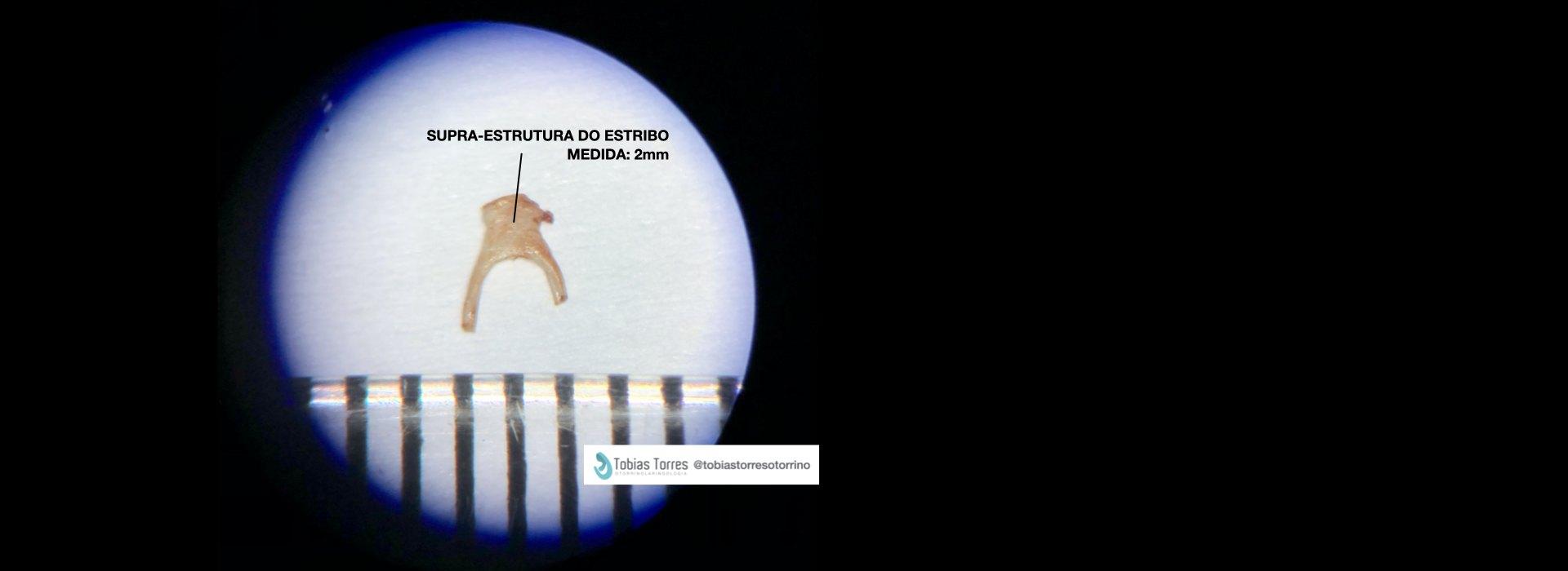 Estapedotomia - Estapedectomia - Cirurgia para Otosclerose